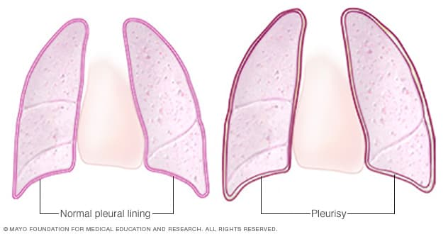 Illustration showing normal pleural lining and pleurisy