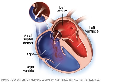 Illustration of an atrial septal defect