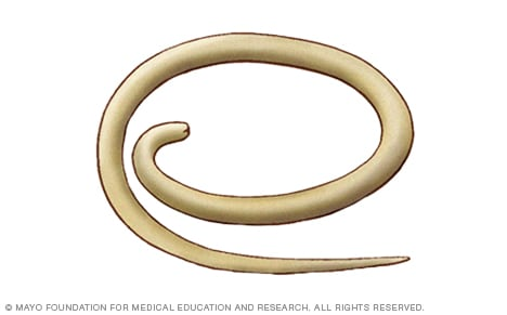 Illustration of pinworm