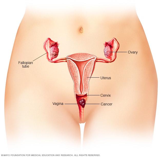 The English Patient Vagina 6