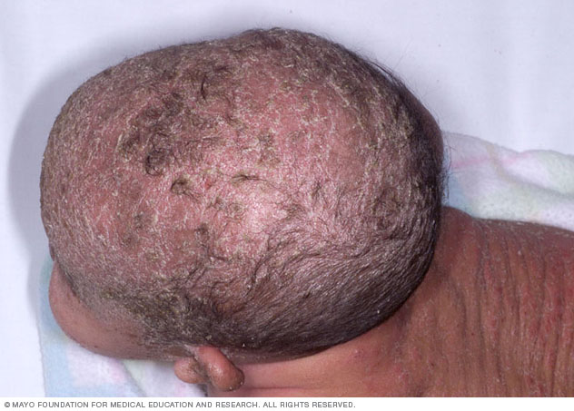 Image of cradle cap on dark skin