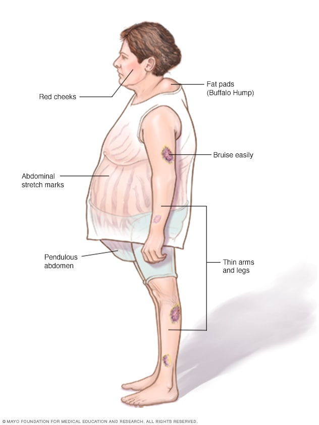 Image showing Cushing syndrome