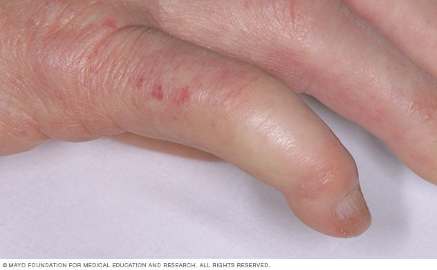 Photograph showing finger affected by limited scleroderma