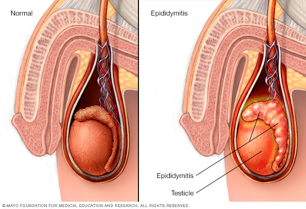 Illustration of the scrotum, testicle and epididymis