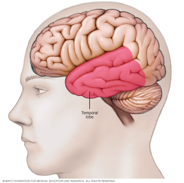 Illustration showing location of temporal lobe
