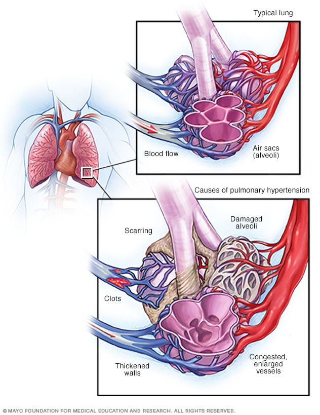 Blood flow in lungs, and normal and blocked pulmonary arteries