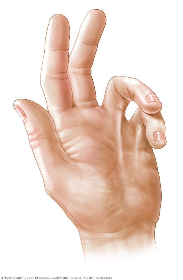 Photograph of a hand with Dupuytren's contracture