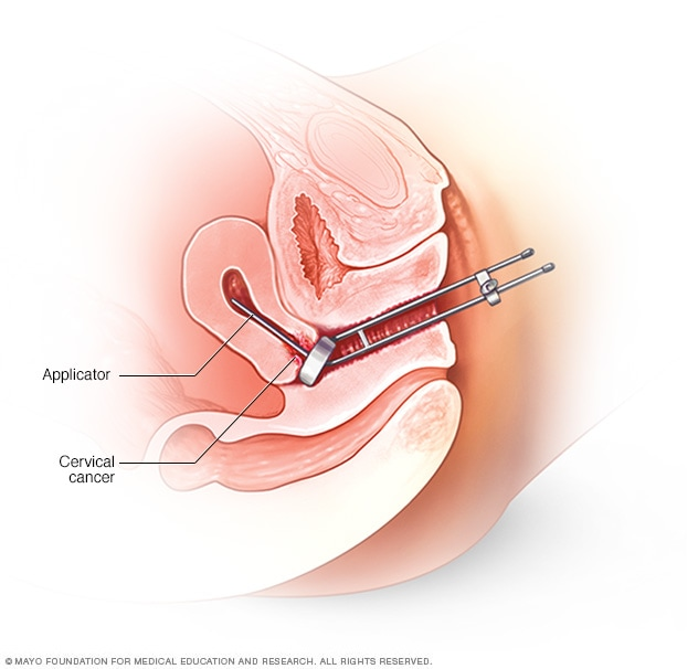 Illustration showing intracavity brachytherapy