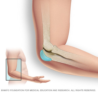 Illustration showing elbow bursa