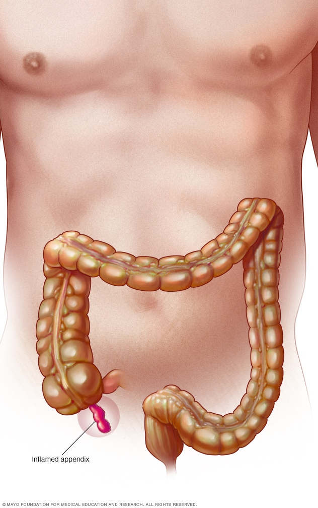 Illustration showing inflamed appendix