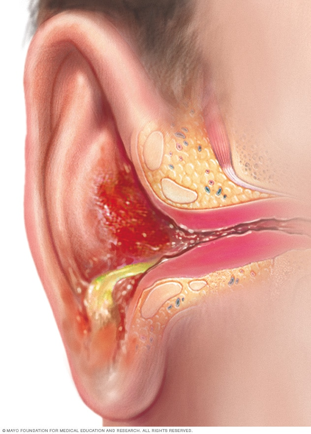 Illustration showing outer ear infection