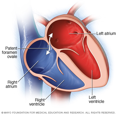 Illustration showing patent foramen ovale