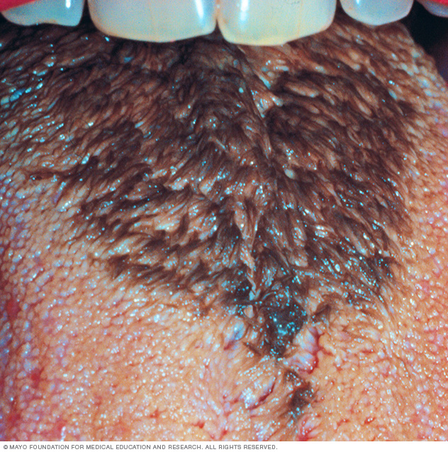 Photo showing black hairy tongue