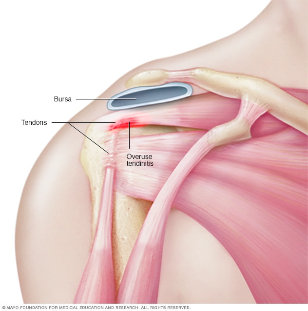 Illustration showing tendons in shoulder