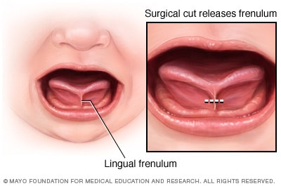 Image of tongue-tie and release of lingual frenulum