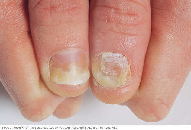 Photograph of thumbnails affected by psoriasis