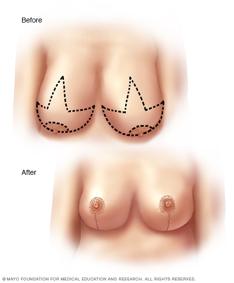 Illustration of incisions made for breast reduction surgery