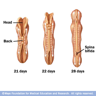 Illustration of spina bifida