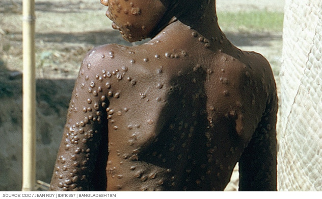 Photograph showing smallpox pustules covering the trunk of the body