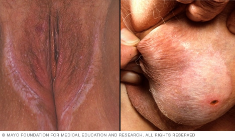 Images showing lichen sclerosus in genital area