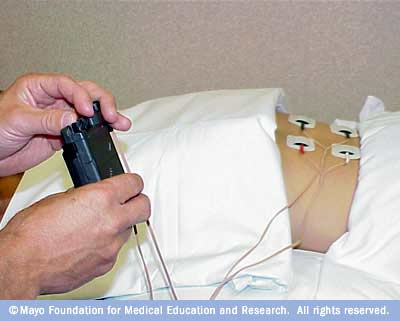 Photo of transcutaneous electrical nerve stimulation (TENS) being administered
