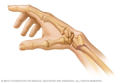 Illustration showing Colles' fracture