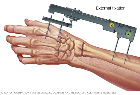Illustration showing external fixation of a broken wrist