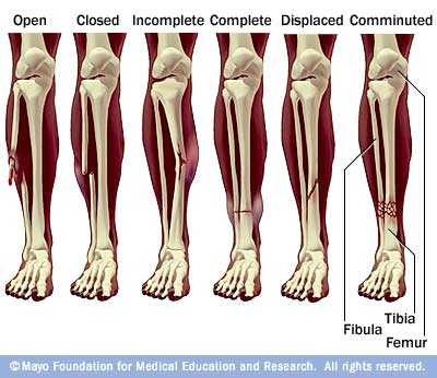 Illustration of broken leg showing types of leg fractures