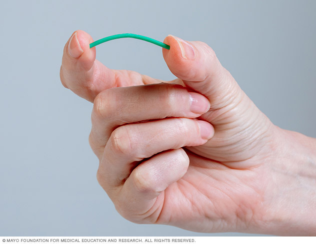 Photo of contraceptive implant