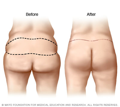 Illustration of buttock lift results