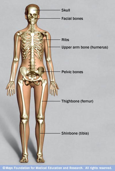 Illustration showing bones commonly affected by fibrous dysplasia