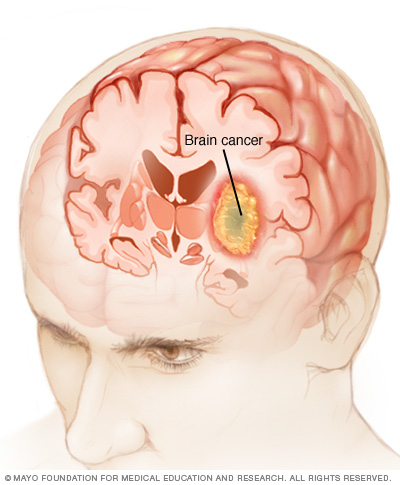 Illustration showing brain cancer