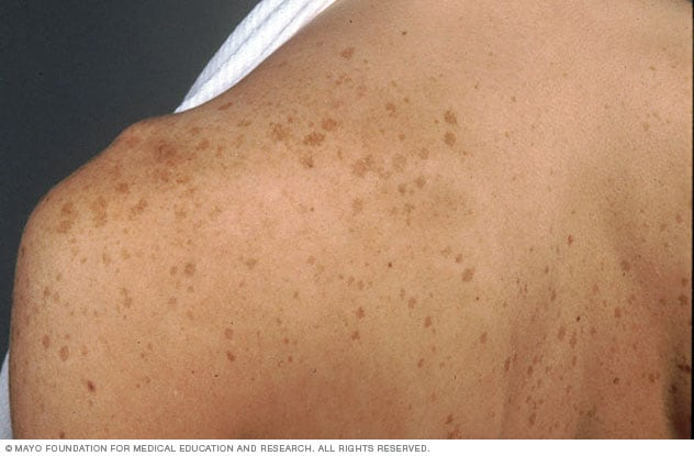 Picture of age spots on the shoulder and back