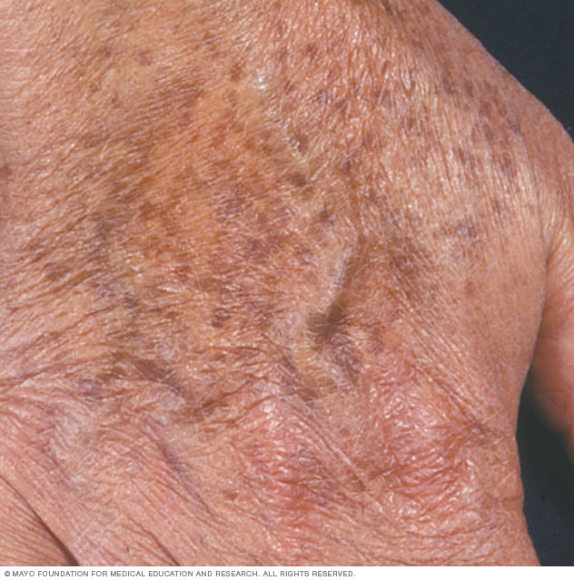Picture of age spots on the hand