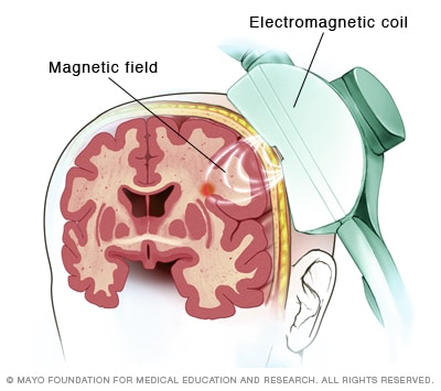 Repetitive transcranial magnetic stimulation (rTMS)