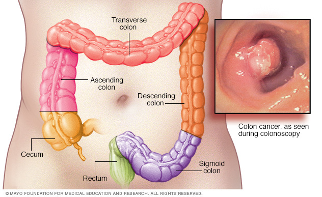 Image of colon cancer locations
