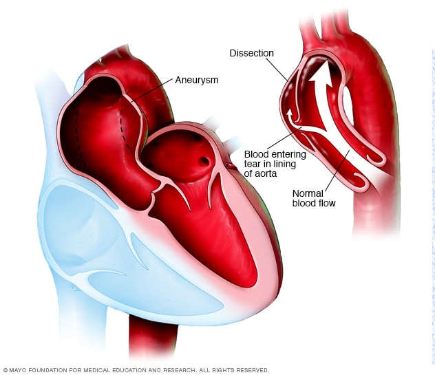 Illustration showing aortic dissection