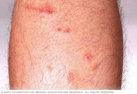 Photograph showing poison ivy rash