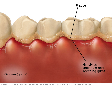 Illustration showing gingivitis