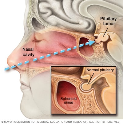 Illustration of endoscopic transnasal transsphenoidal surgery