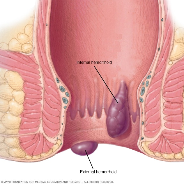 Illustration showing hemorrhoids