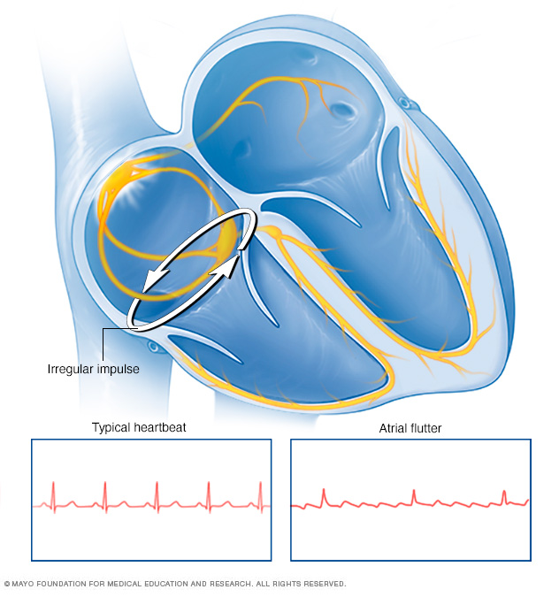 Illustration showing atrial flutter