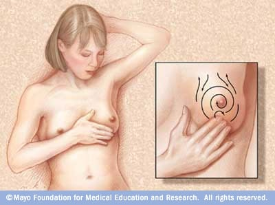 Illustration demonstrating breast self-exam
