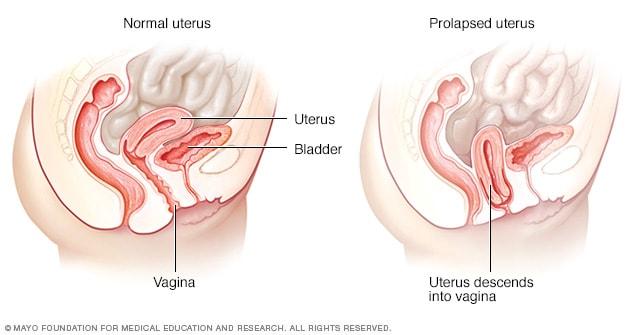 Uterine Prolapse Mayo Clinic
