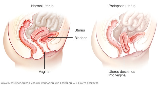Illustration showing normal uterus and prolapsed uterus