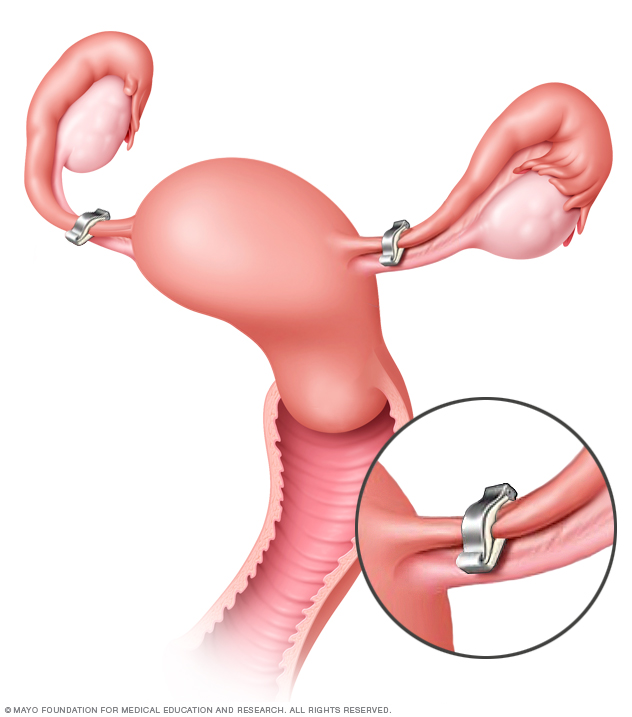 Illustration of tubal ligation
