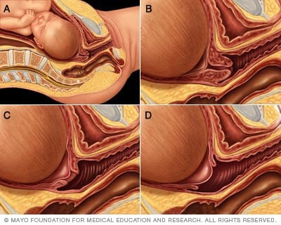 Illustration of cervical effacement and dilation