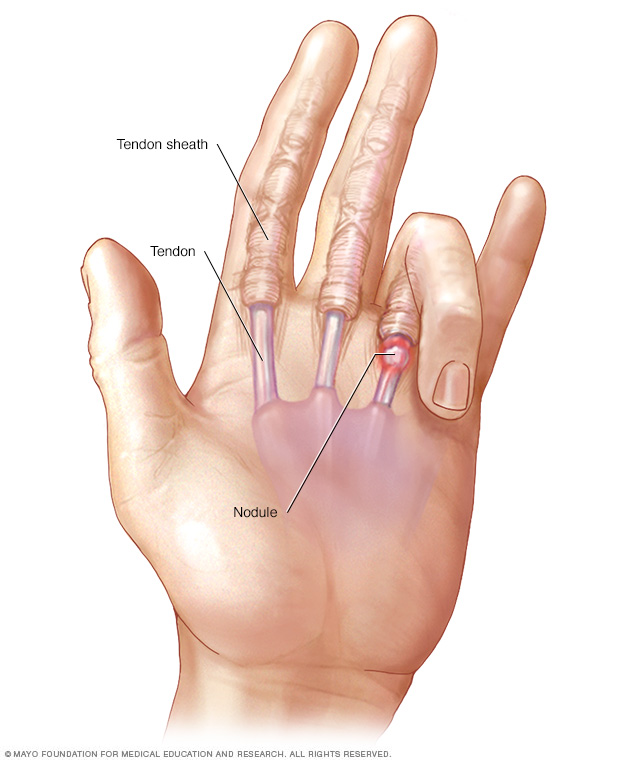 Illustration of trigger finger