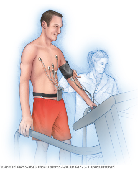Illustration showing a man performing an exercise stress test