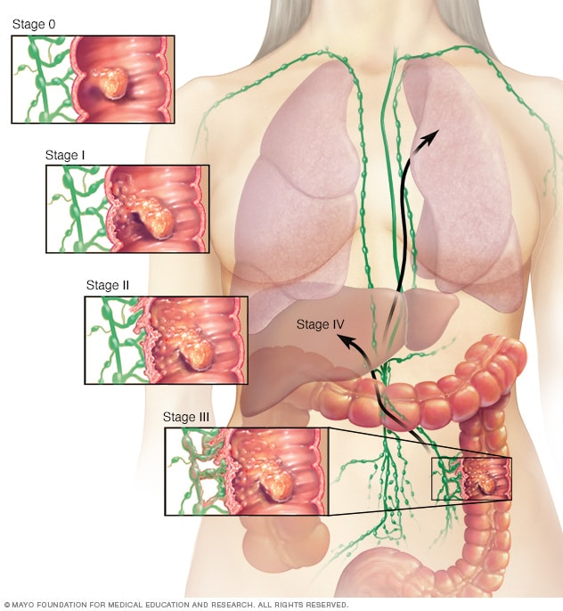 Illustration showing colon cancer stages